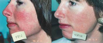 IPL /Photofacial for Rosacea Washington DC & Virginia