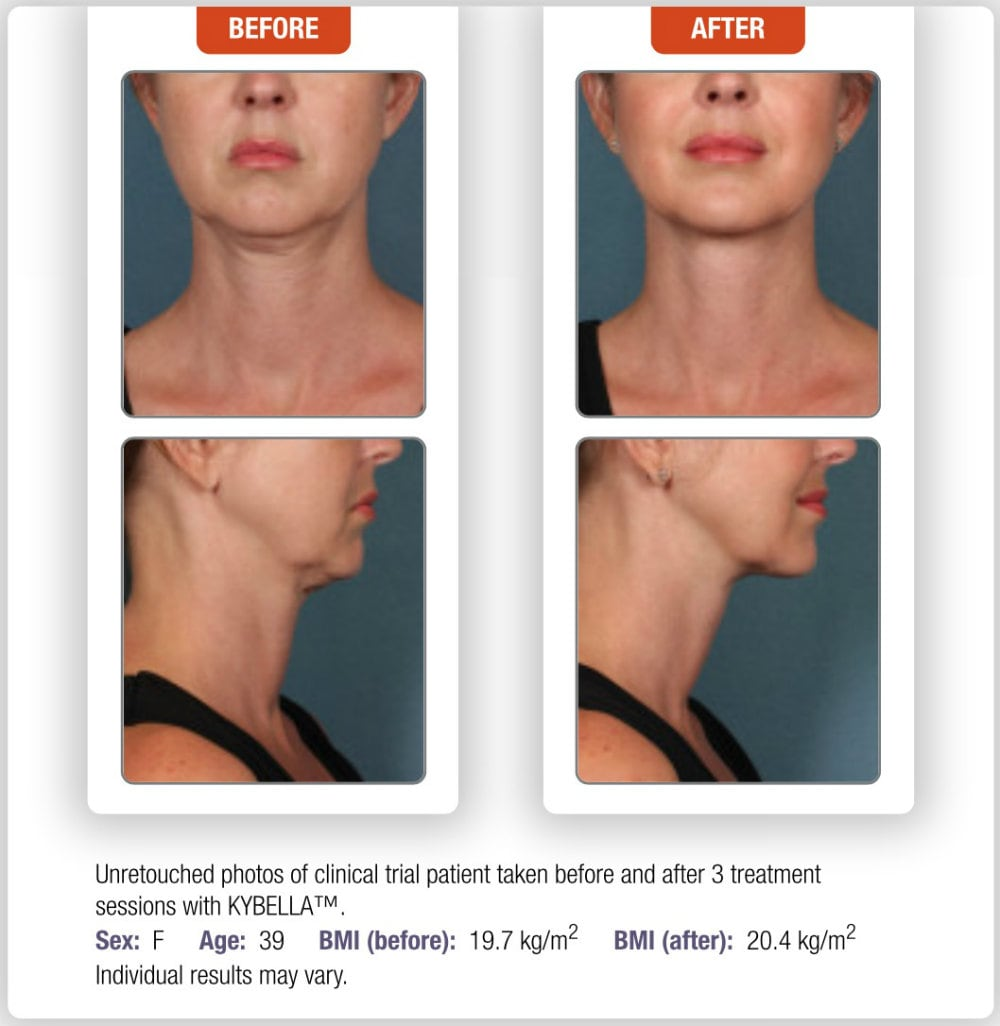 Kybella Medical Cosmetic Washington DC