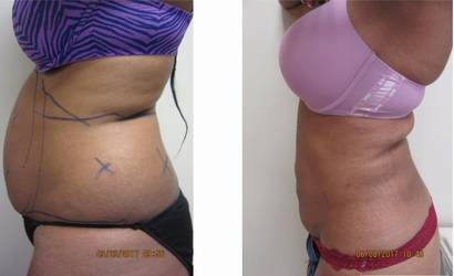 liposuction Drew Varano MD