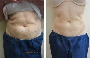 Collsculpting abdomen Dr Varano Washington DC