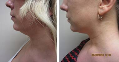 coolsculpting double chin Washington DC dr varano