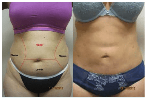Liposuction Dr Varano Washington DC/Virginia