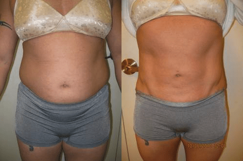 Liposuction D Varano Washington DC