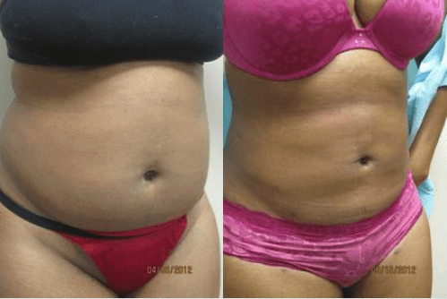 Liposuction Washington DC Dr Varano