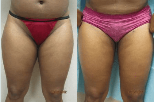 inner thigh Liposuction by Drew Varano MD Washington DC