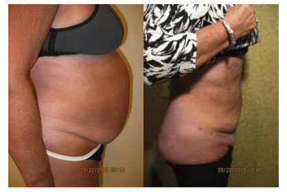 abdomen Liposuction by Drew Varano MD Washington DC