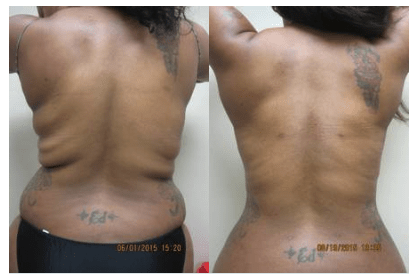 Back Liposuction by Drew Varano MD Washington DC/Virginia