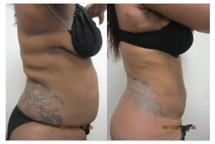 Liposuction by Drew Varano MD Washington DC