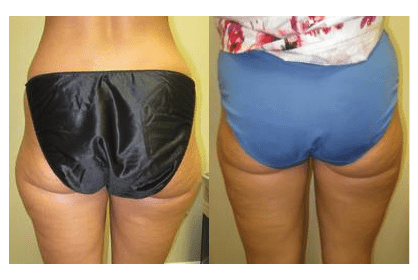 Outer thigh Liposuction by Drew Varano MD Washington DC