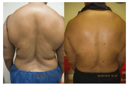 Upper & Lower Back liposuction Drew Varano MD Washington DC