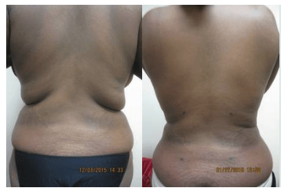 Back Liposuction by Drew Varano MD Washington DC & Virginia