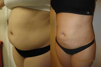 Liposuction by Drew Varano MD Washington DC & Virginia