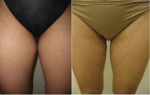 Inner thigh Liposuction by Drew Varano MD Washington DC & Virginia