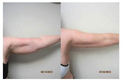 Liposuction by Drew Varano MD Washington DC, Virginia