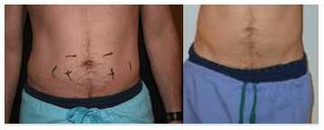 Coolsculpting vs Liposuction Dr Varano Washington DC