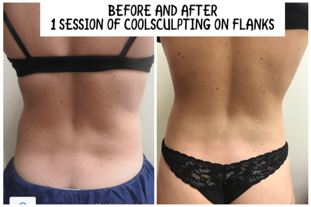 Coolsculpting before /after Drew Varano