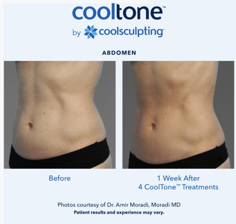 Cooltone medical Cosmetic enhancements