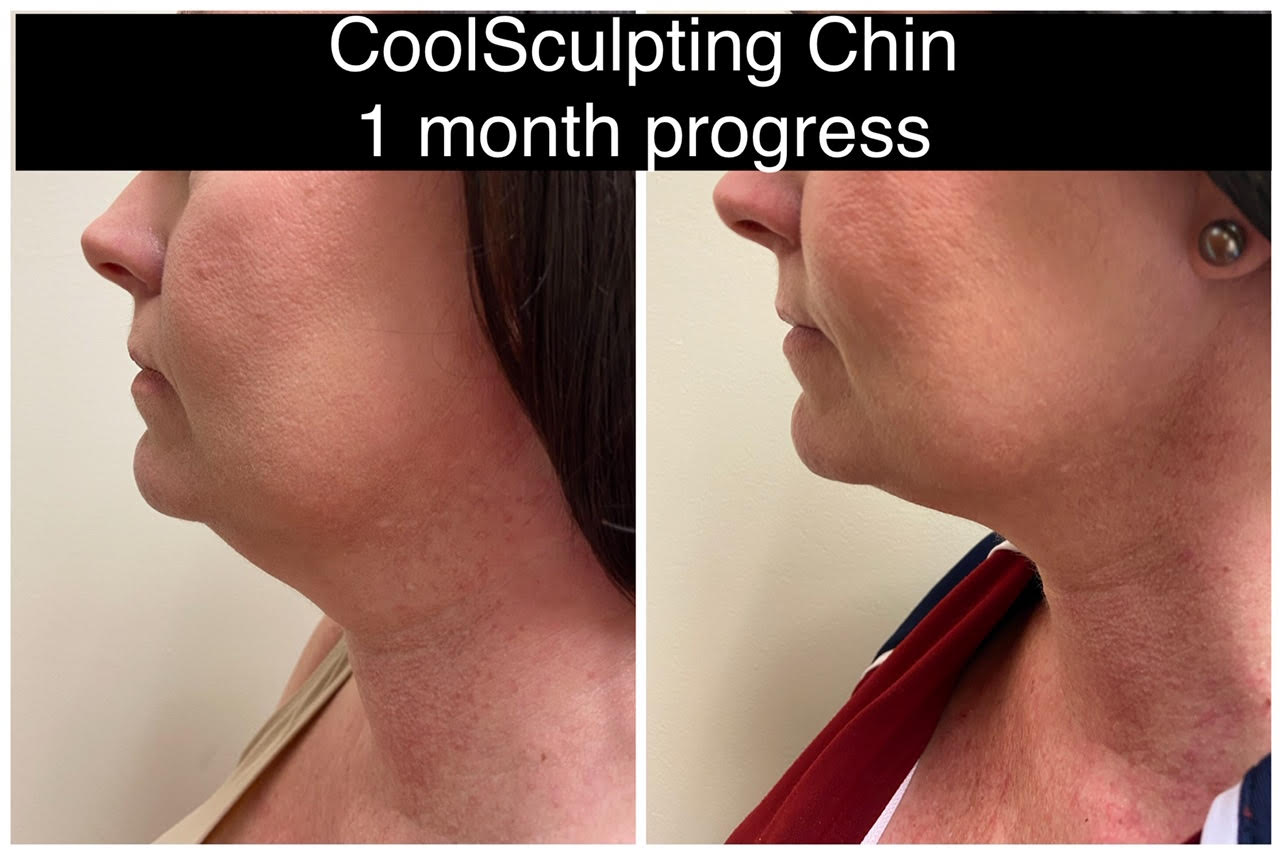 Drew Varano neck coolscupting washington dc