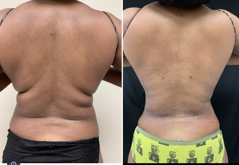 Back liposuction by Drew Varano MD