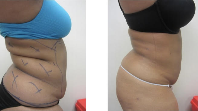 Liposuction 8 weeks later Drew Varano MD