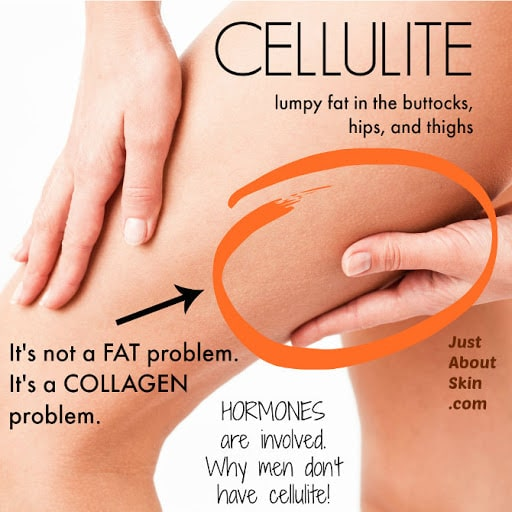 cellulite medical cosmetic