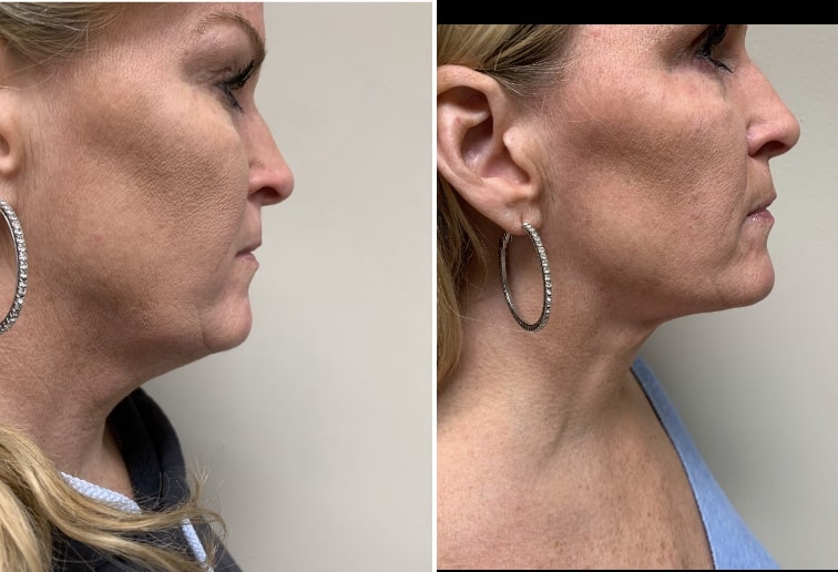 Neck liposuction combine with Renuvion by  Dr Varano